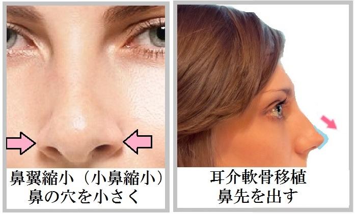 鼻全般_001